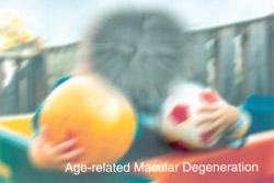 age_macular_vision